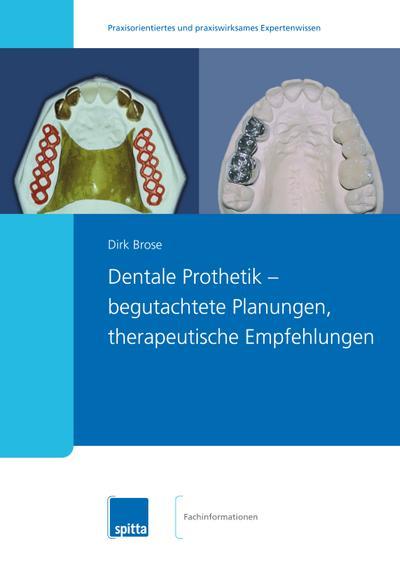 Dentale Prothetik ? begutachtete Planungen, therapeutische Empfehlungen