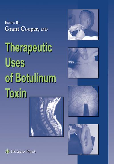 Therapeutic Uses of Botulinum Toxin (Musculoskeletal Medicine)