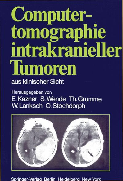 Computertomographie intrakranieller Tumoren aus klinischer Sicht