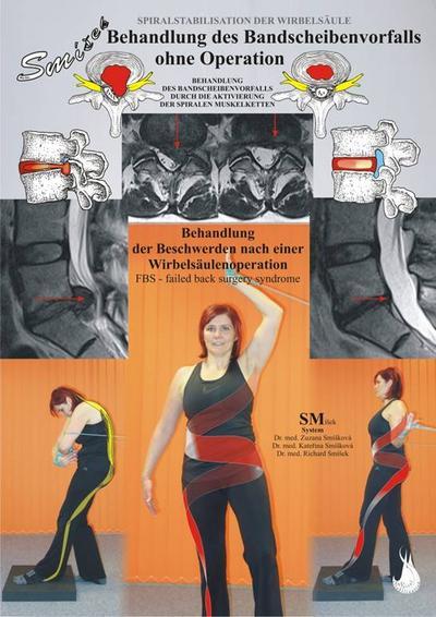 Behandlung des Bandscheibenvorfalls ohne Operation: Behandlung des Bandscheibenvorfalls durch die Aktivierung der spiralen Muskelketten