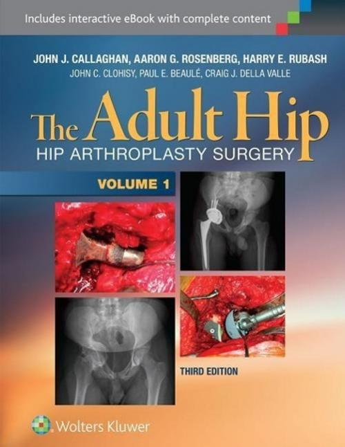 John J. Callaghan ~ The Adult Hip: Arthroplasty and Its Altern ... 9781451183696