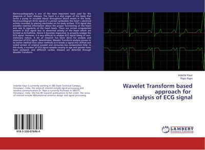 Wavelet Transform based approach for analysis of ECG signal