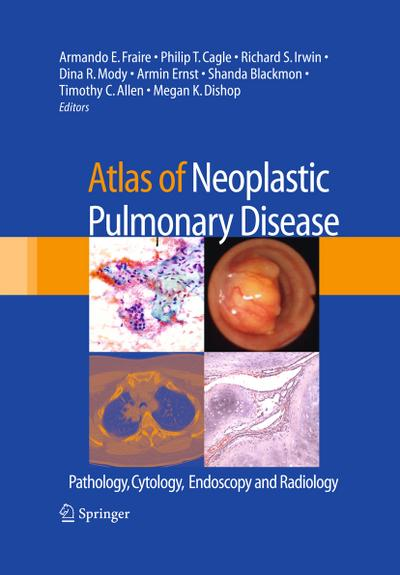 Atlas of Neoplastic Pulmonary Disease