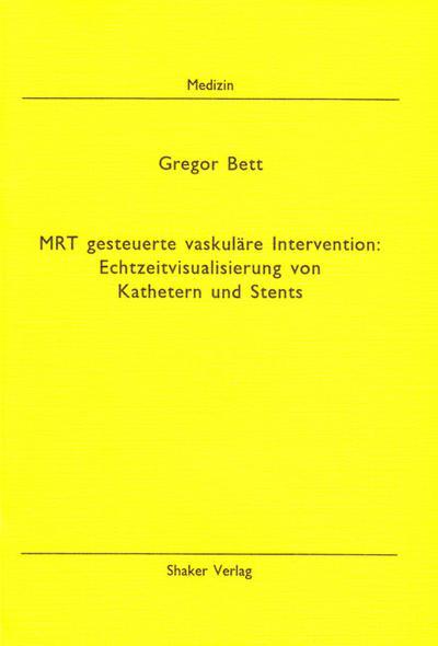 MRT gesteuerte vaskuläre Intervention: Echtzeitvisualisierung von Kathetern und Stents