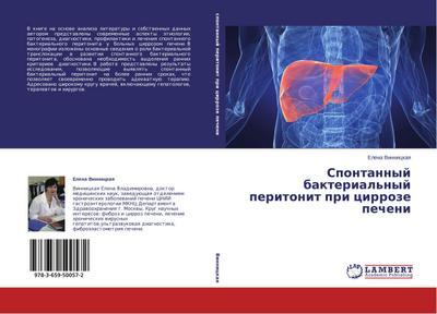 Spontannyj bakterial'nyj peritonit pri cirroze pecheni