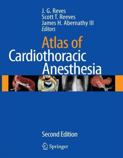 Atlas of Cardiothoracic Anesthesia