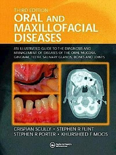 Oral and Maxillofacial Diseases: An Illustrated Guide to Diagnosis and Management of Diseases of the Oral Mucosa, Gingivae, Teeth, Salivary Glands, ... Teeth, Salivary Glands, Bones and Joints