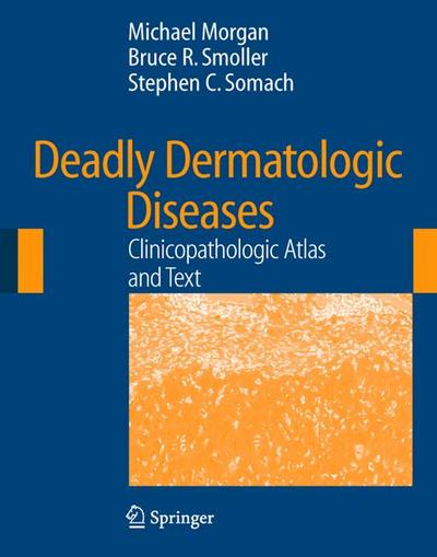 Deadly Dermatologic Diseases
