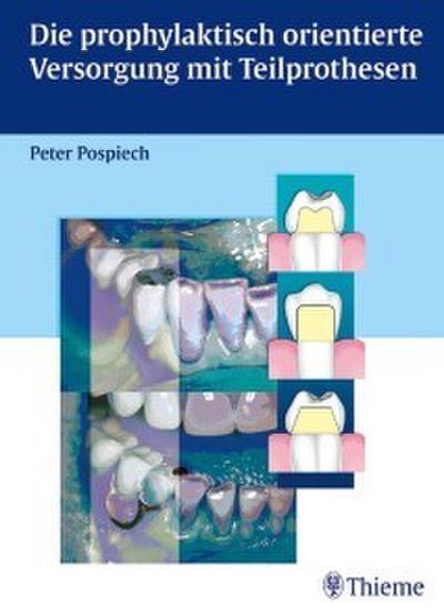 Die prophylaktisch orientierte Versorgung mit Teilprothesen