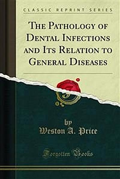 The Pathology of Dental Infections and Its Relation to General Diseases